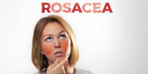 Hoe je de huidaandoening rosacea te lijf gaat