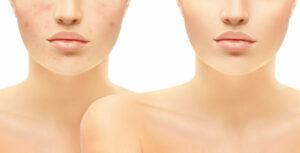 Help! Wat te doen bij acne op latere leeftijd