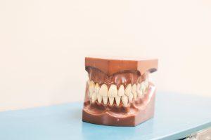 invloed van diabetes op tandvlees